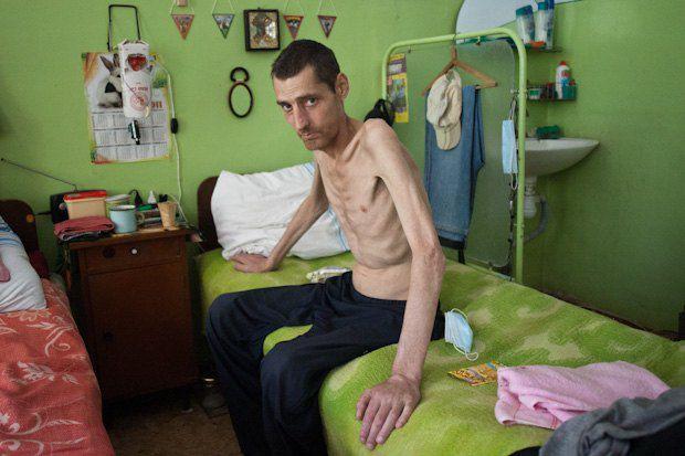 фото туберкулезом больной человек