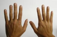 Учені запропонували визначати рівень холестерину за фотографією