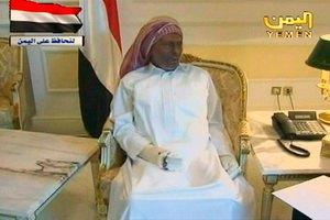Президент Йемена с обожженным лицом и руками появился на ТВ