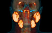 Ученые обнаружили неизвестный ранее орган в центре головы человека, - BBC