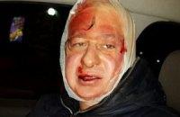 """Еще один журналист заявил об избиении """"Беркутом"""""""