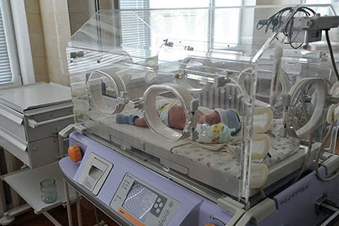 У Чернівцях народилися сіамські близнюки