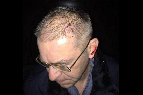 ГПУ закрила справу проти Пашинського, який під час конфлікту на дорозі вистрілив людині в ногу