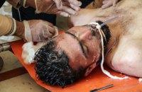 Сирійські війська тричі застосовували хімзброю з хлором у цьому році, - ООН