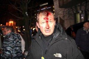 Милиция сняла оцепление митингующих со стороны Крещатика