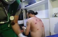 После разгона митинга в больницах Тбилиси остаются более 50 пострадавших