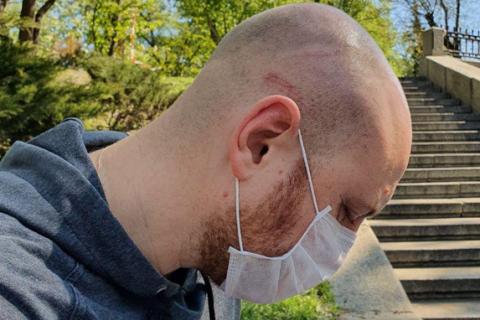 Полицейскому объявили подозрение через год после нападения на журналиста Кутепова