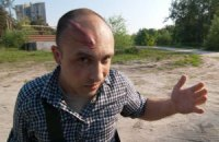 Журналиста избили телескопической трубкой