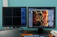 У Дніпрі встановили сучасний ангіограф, обстеження на якому - безкоштовні