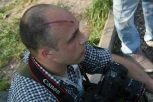"""Милиция обвинила избитого журналиста в нападении на """"какого-то человека"""""""