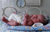 В Венгрии расследуют обстоятельства смерти восьми недоношенных детей в больнице