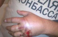 """Милиция винит перфоратор в ранении мужчины в футболке """"Спасибо жителям Донбасса"""""""