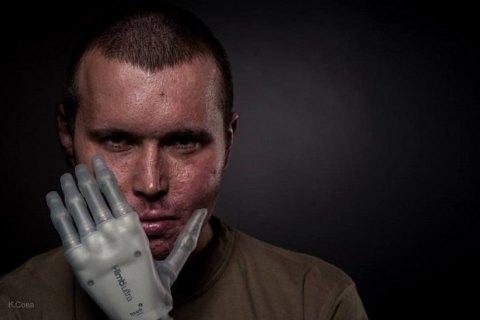 Бионические протезы рук будут устанавливать в Украине со следующего года