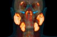 Учені виявили невідомий раніше орган у центрі голови людини, - BBC