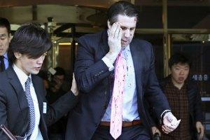 """Північнокорейські ЗМІ: посол США в Сеулі """"заслуговував покарання"""""""