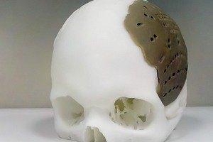Американцу заменили кости черепа при помощи 3D-принтера