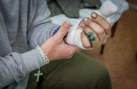 Раненые бойцы АТО могут получить образование на льготных условиях