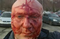Відомого київського догхантера Святогора жорстоко побили після суду
