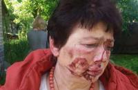 У Коцюбинському побили голову тервиборчкому