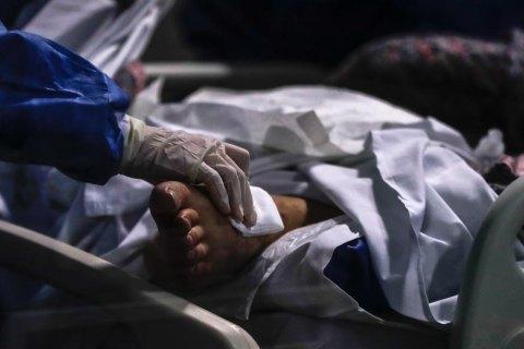 У київській лікарні помер один із шести пацієнтів, у якого підтвердили COVID штаму дельта