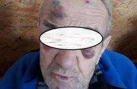 У психоневрологічному інтернаті Дніпропетровської області жорстоко знущалися над підопічними