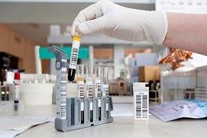 Минздрав фиксирует новые случаи кори