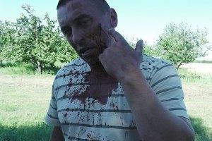 "Милиция расследует драку на ""Агрофирме Корнацких"""