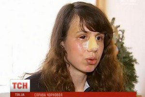 Татьяна Чорновол рассказала подробности избиения