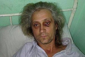 Побитого на Банковій журналіста Гарагуца визнали потерпілим, - адвокат