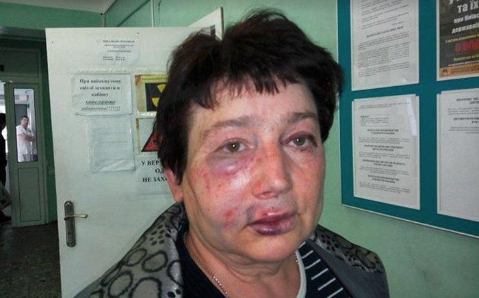 Людмилу Демченко жорстоко побили у дворі її власного приватного будинку.