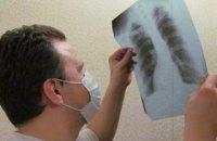 Минздрав: Украина находится на втором месте в Европе по заболеваемости туберкулезом