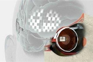 Учені успішно випробували біонічне око, імплантоване людині