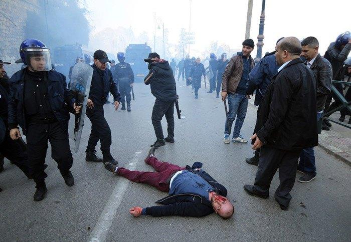 Пострадавший после столкновений с полицией во время демонстрации против пятого срока президентства Бутефлики в Алжире, Алжир, 22 февраля 2019.