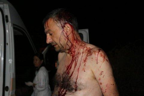 Головного редактора овідіопольської газети побили кікбоксери