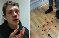 В Днепре неизвестные в балаклавах избили двух местных активистов (обновлено)