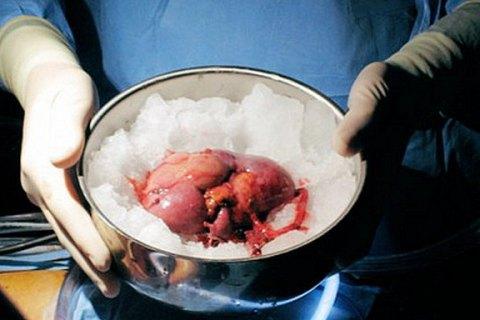 Силовики поймали группу черных трансплантологов