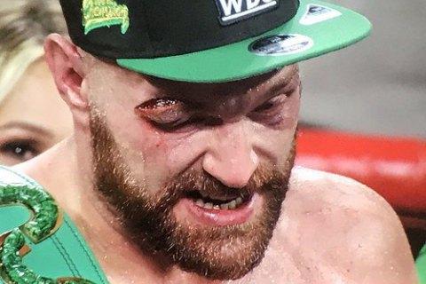 Ф'юрі відмовився боксувати у 2020 році