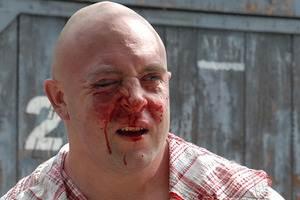 Міліція хоче порушити кримінальну справу через побиття геїв у Києві