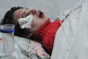 МВД: избиение Чорновол могло быть провокацией