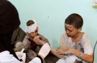 29 дітей загинули в результаті авіаудару в Ємені