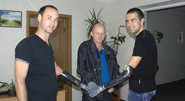 Трьом бійців з України, які втратили руки на війні, в Італії поставили міопротези