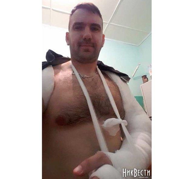 Депутат Руслан Нерода вже з гіпсом на зламаній руці в лікарні