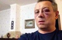 Захарченко держит на контроле расследование избиения Куренного