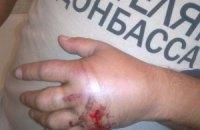 """В милиции ничего не знают о ранении мужчины в футболке """"Спасибо жителям Донбасса"""""""