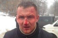 Избиение нардепа Левченко расследуют как насилие против государственного деятеля