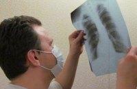 Рівень захворювання на туберкульоз серед дітей зріс до 1,5%