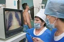В Киеве заболеваемость туберкулезом среди подростков выросла почти вдвое