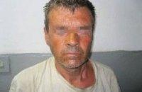 У Чернігівській області затримали педофіла, який, удаючи лікаря, змушував дітей роздягатися