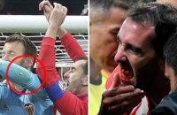 """Воротар """"Валенсії"""" вибив кілька зубів капітану """"Атлетіко"""" під час матчу"""