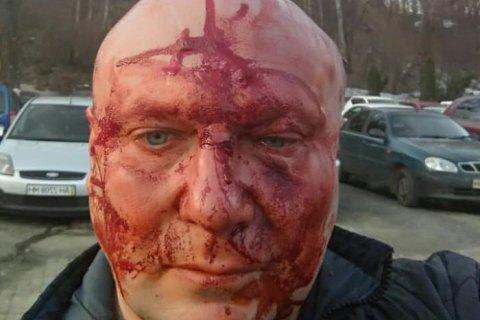 Известного киевского догхантера Святогора жестоко избили после суда